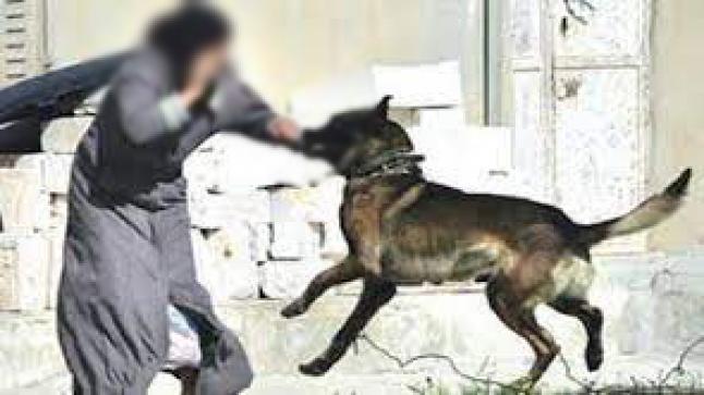 خطير.. سيدة بأزغنغان تتعرض لهجوم من كلب مسعور – صور